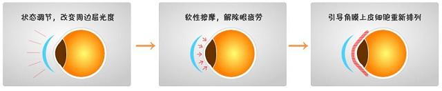 角膜塑形镜 爱尔.jpg