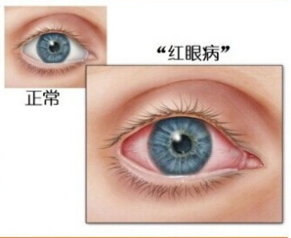 红眼病.png